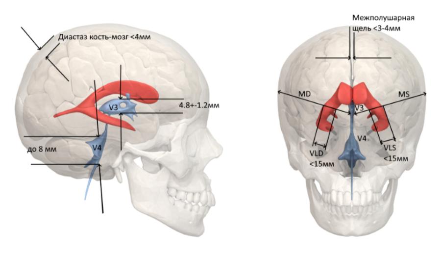 Нейросонография (НСГ), VLD, VLS, MS MD, межполушарная щель, диастаз кость мозг